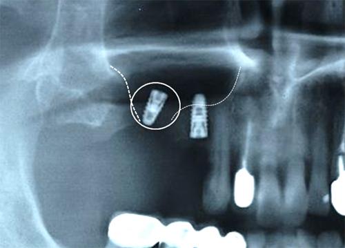 上顎 洞 炎